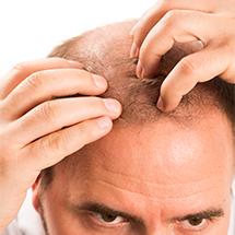 medea-chirurgia-estetica-autotrapianto-capelli