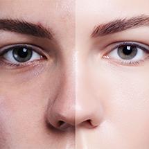 medea chirurgia estetica blefaroplastica occhi