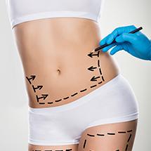 medea chirurgia estetica lipoaspirazione liposuzione intervento