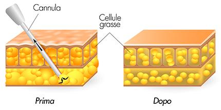 medea chirurgia estetica lipoaspirazione liposuzione tecnica