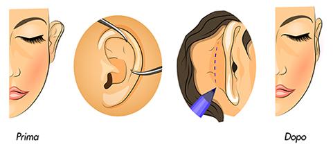 medea chirurgia estetica otoplastica orecchie tecnica