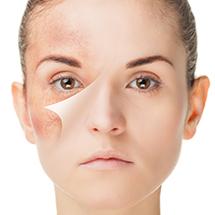 medea-chirurgia-estetica-pelle-mappatura-nevi