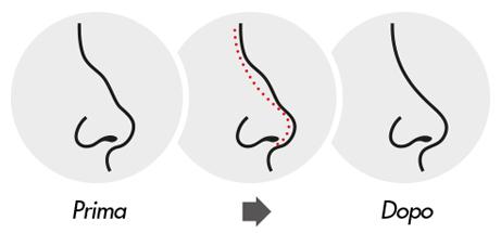 medea chirurgia estetica rinoplastica naso intervento
