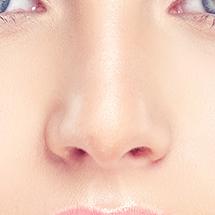 medea chirurgia estetica rinoplastica naso volto