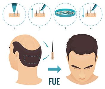 medea chirurgia estetica trapianto capelli fue