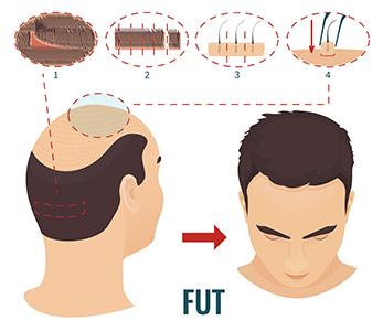 medea chirurgia estetica trapianto capelli fut