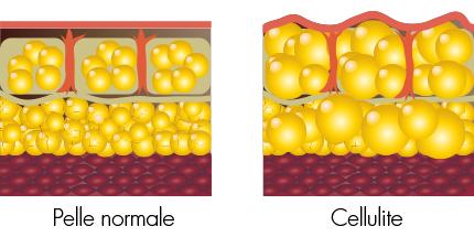 medea-medicina-estetica-Intralipoterapia-cellulite-disegno