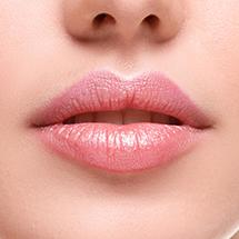 Rimodellamento, aumento volume, ingrandimento labbra