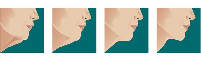 medea medicina estetica correzione profilo mento fasi