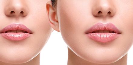 medea medicina estetica filler labbra acido ialuronico