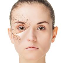 medea medicina estetica fotoringiovanimento cutaneo capillari