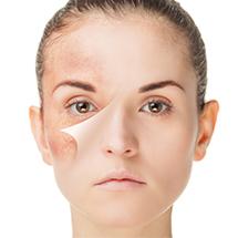 medea-medicina-estetica-fotoringiovanimento-cutaneo-couperose