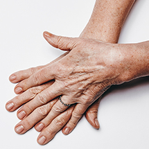 medea medicina estetica macchie cutanee mani