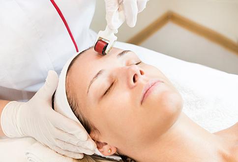 medea medicina estetica needling Collagen Induction Therapy.