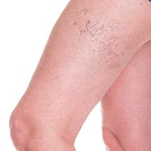 Sclerosanti (trattamento dei capillari arti inferiori)