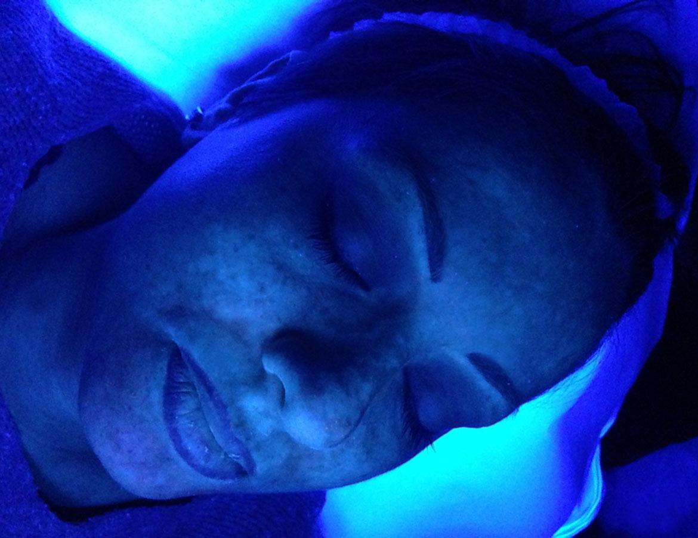luce ultravioletta di Wood macchie cutanee MEDEA estetica