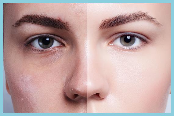 medea medicina chirurgia estetica prima e dopo