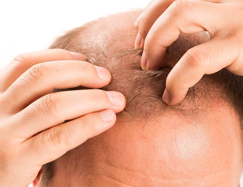medea medicina estetica capelli-trapianto alopecia androgenetica